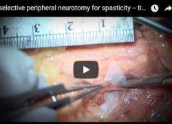 Video: Elective Peripheral Neurotomy For Spasticity — Tibial Nerve
